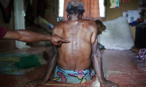 The victim of an alleged sorcery accusation attack shows the wounds on his back. Sorcery-related violence, including murders, are common across PNG.
