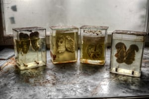 Human kidney samples preserved in blocks.