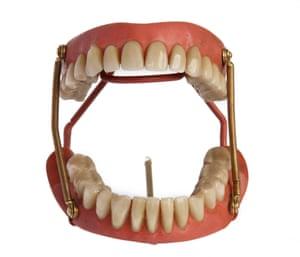 Full vulcanite denture with porcelain teeth and springs