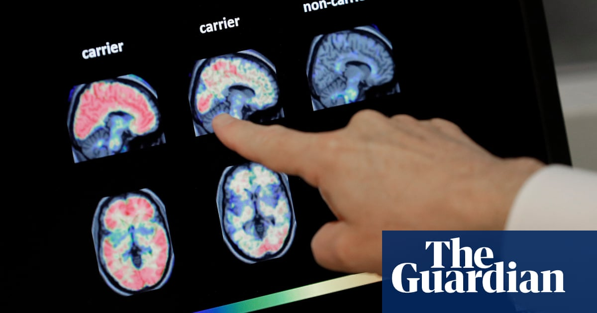 Artificial intelligence could be used to diagnose dementia