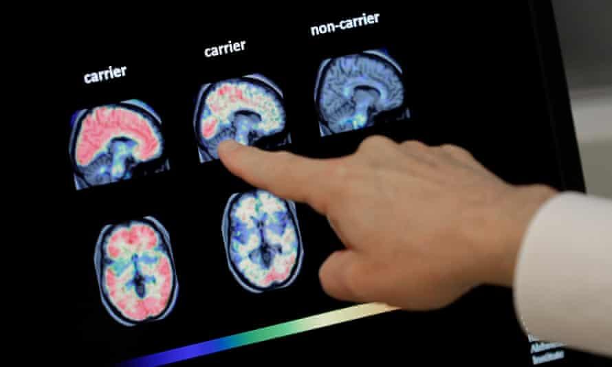PET brain scan