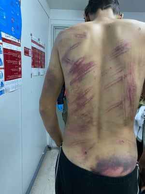 An asylum seeker shows wounds allegedly inflicted by Croatian police.