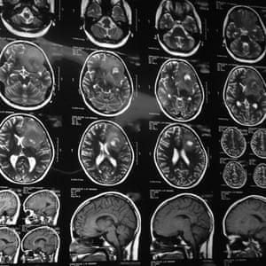 Head scans at a surgery ward in Tehran, Iran.