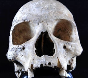 The pre-Norman skull, found by chance in a garden in Hoxne, had disfiguring marks including the destruction of her nose: hallmarks of leprosy.