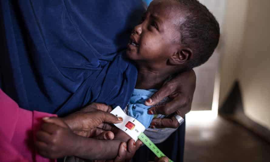 A child has his arm measured at a clinic in Somalia
