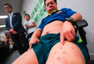 Pro-democracy activist Howard Lam, who claims he was abducted, blindfolded and beaten by mainland Chinese agents, shows his stapled thighs and chest injuries during a press conference in Hong Kong.