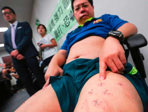 Howard Lam shows his stapled thighs