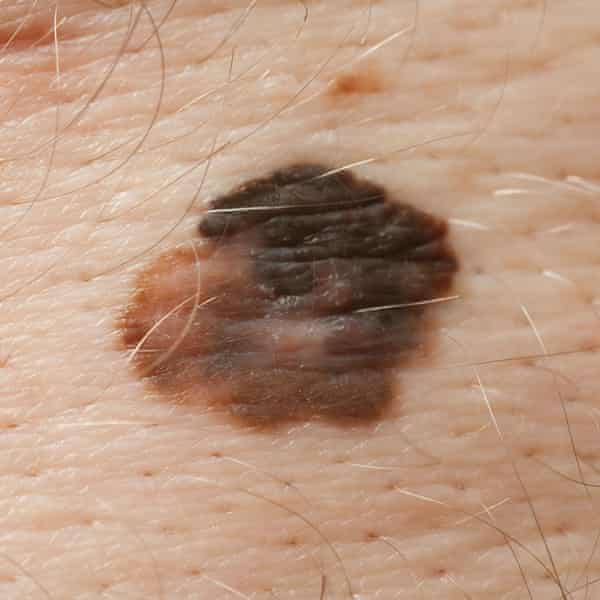 A melanoma
