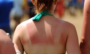 Even fair individuals, who might normally turn pink in the sun would tan using the chemical, the scientists say.