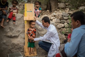 A young boy is measured for malnutrition at a mobile health clinic in Radfan village