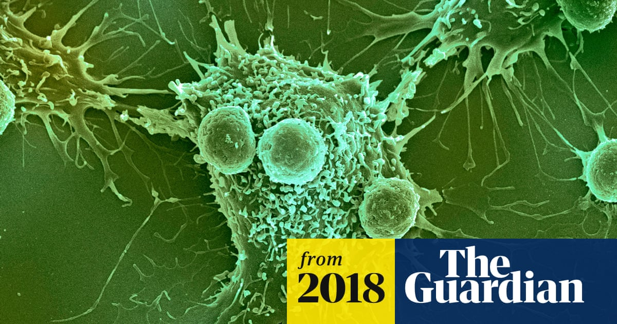 NHS preparing to offer 'game-changing' cancer treatment | Science
