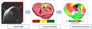 Patient-specific digital heart models are constructed from MRI scans. The virtual heart is then used to predict the patient's risk of developing a lethal arrhythmia.