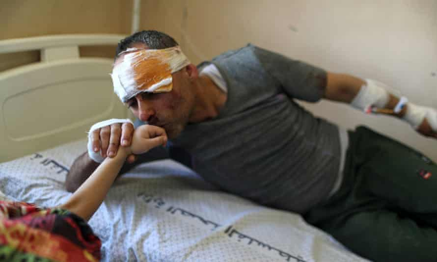 Bandaged patient kisses daughter's hand