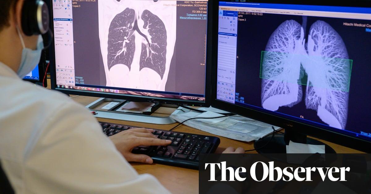 Early CT scans deliver huge fall in lung cancer deaths, study shows