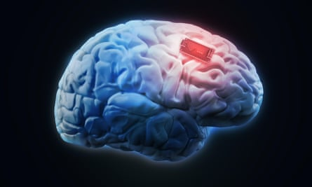 Concept illustration for human brain implant