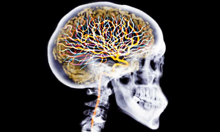 X-ray of skull showing brain and neurons