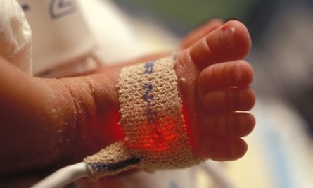 Pulse oximeter on a premature baby's foot.