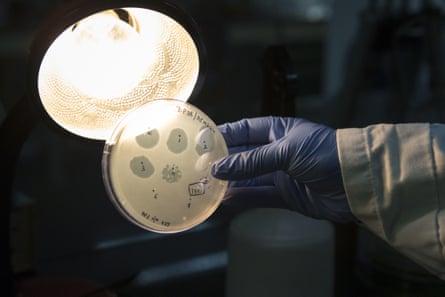 Piring agar-agar yang berisi bakteriofag di laboratorium di Bengaluru, India.