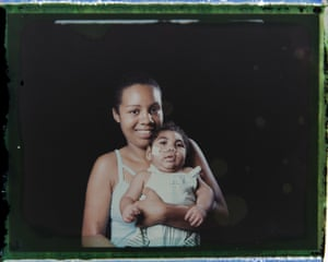 Tatiane do Nascimento with her son Willamis Silva. He was having swallowing problems and not gaining weight so a feeding tube was introduced, which in less than a month he pulled out a couple of times. Barbosa, who has two other children, says she used to take Williamis daily to the hospital or physical therapy, but now they are going two or three times a week