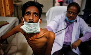 An Indian doctor examines a tuberculosis patient. Cases of multidrug-resistant TB have also risen to 580,000 globally, figures reveal.