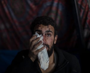 A displaced injured man, fleeing from conflict, waits for an ambulance at a checkpoint near Qayara, south of Mosul.