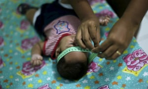 Two-month-old Guilherme Soares Amorim, who was born with microcephaly, gets his head measured by his mother in Ipojuca, Brazil.