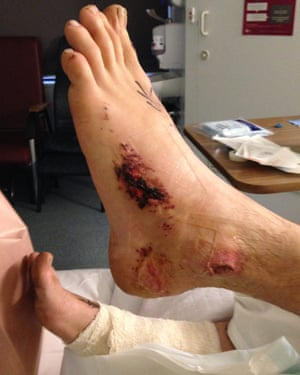 Tim Hunt's injuries from the crush at Falls festival in Lorne. He says gravel wore through flesh 'like a cheese grater'