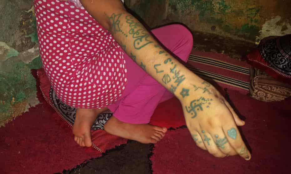 Khadija Okkarou in 2018, displaying tattoos and cigarette burns she said were made by gang members.