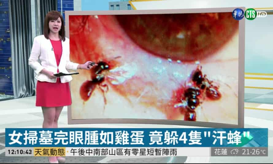 Taiwanese television showing the bees living in the persons eye.