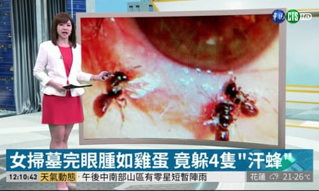Doctors discover four live bees feeding on tears inside woman's eye