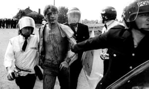 An arrested miner is taken to an ambulance for treatment during the 1984 miners' strike in Orgreave.