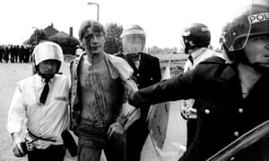 An injured miner being arrested during the Orgreave.