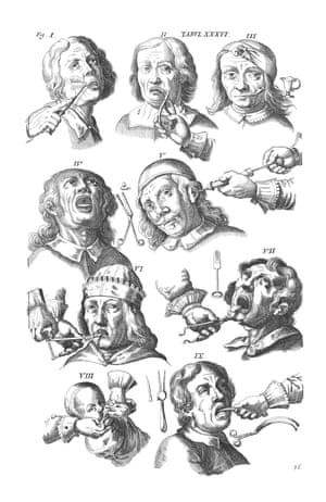 Posthumous milestone … images of pliers, pelicans, probes, pokers and other dental paraphernalia, from Armamentarium Chirurgicum by Johannes Scultetus. The textbook was published in the 1650s, a decade after the death of Scultetus, a German physician and surgeon. The work, which was to prove a medical milestone, sold in translation all over Europe and features a complete catalogue of surgical instruments.