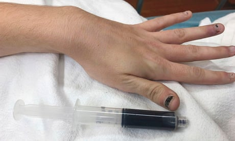 Feeling blue: US woman treated by doctors after blood turned navy
