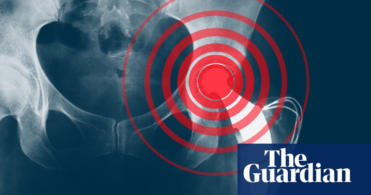 Revealed: faulty medical implants harm patients around world
