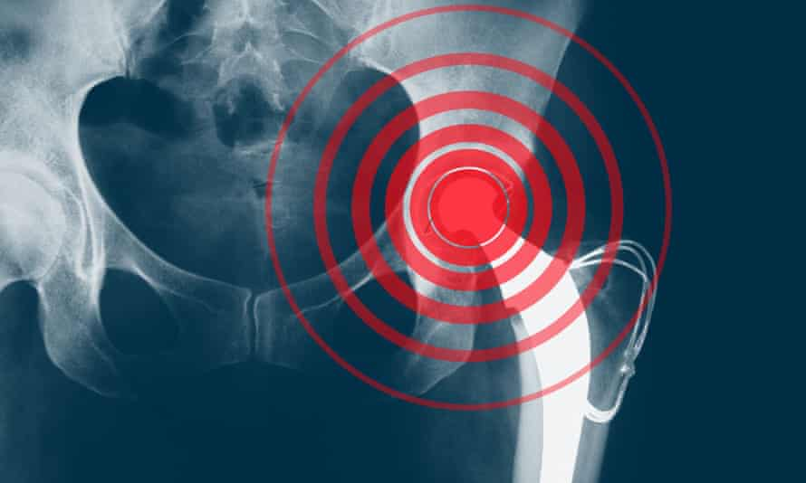X-ray showing a hip replacement
