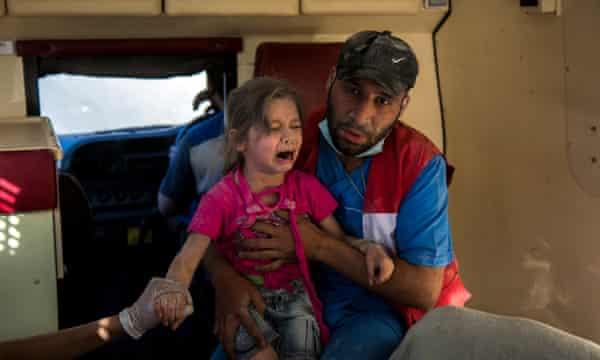 A girl who survived a barrel bomb attack in the Bustan al Qasr neighbourhood, Aleppo.