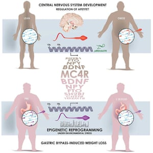 Sperm from obese and lean men carry different biochemical markers that alter the activity of genes and can be inherited. Genes controlling brain development and appetite are thought to be most affected.