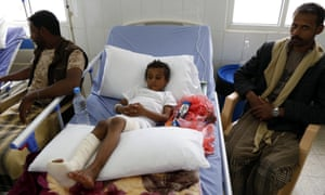 A Yemeni child receives medical treatment after he was injured by the airstrike on the school bus.