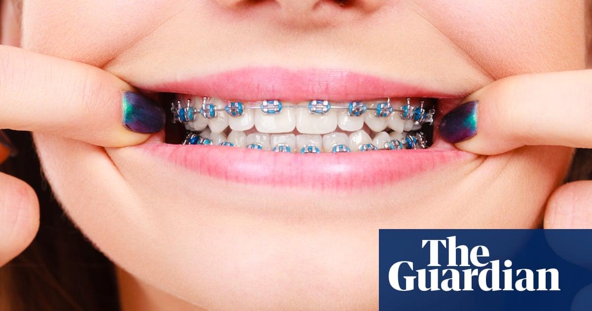 I'm bracing myself for some adult orthodontics