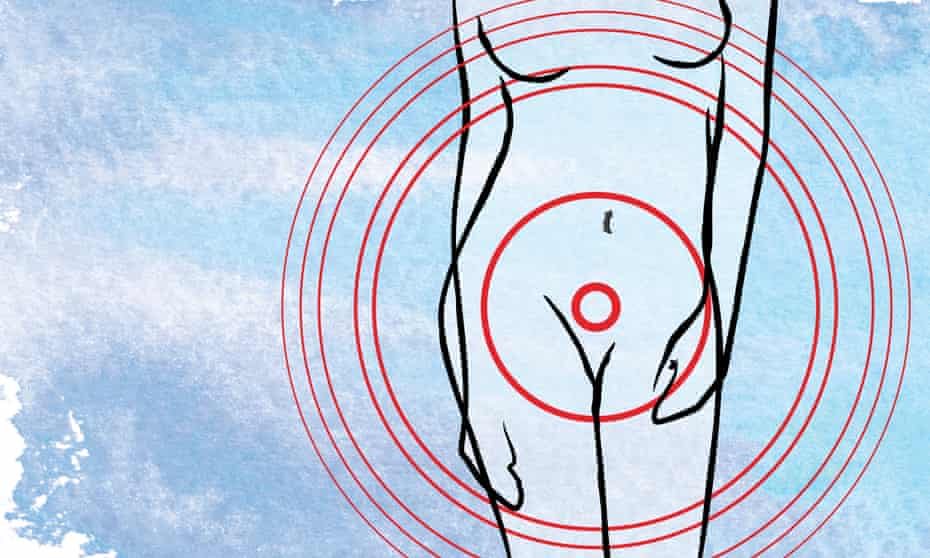 Illustration of a woman's body with red circles around the groin