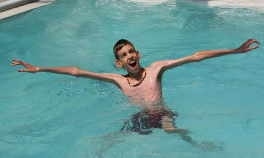 Billy  Marfan syndrome