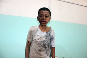 A Yemeni child awaits treatment at a hospital after he was wounded in a reported airstrike on the Iran-backed Huthi rebel-held province of Saada