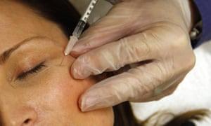 A woman has a botox injection