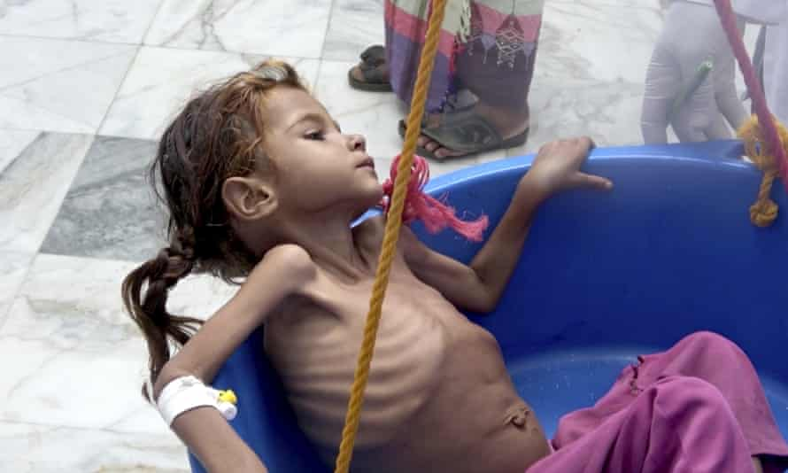 A severely malnourished girl is weighed at the Aslam Health Center in Hajjah in Yemen