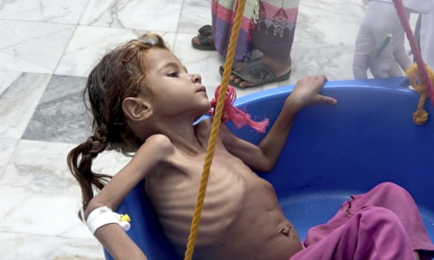 theguardian.com - Killing a generation': one million more children at risk from famine in Yemen