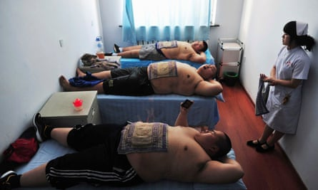 Patients undergo fire treatment, a traditional Chinese remedy for obesity, at a weight loss centre in Changchun.