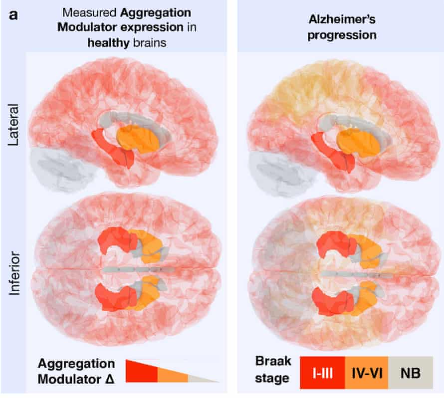 """The 'vulnerability map""""', produced by looking at the levels of certain proteins in the brains of healthy individuals, is consistent with the map of how Alzheimer's progresses."""