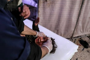 An injured child receives treatment at a hospital in Douma