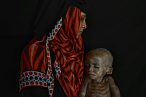 Fawaz Abdullah and his mother at Al Sadaqah hospital in Aden
